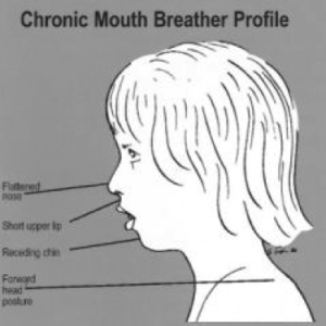 Mouth Breathing and How it Affects Your Health