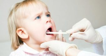 What's A Frenectomy And Why You Might Need One