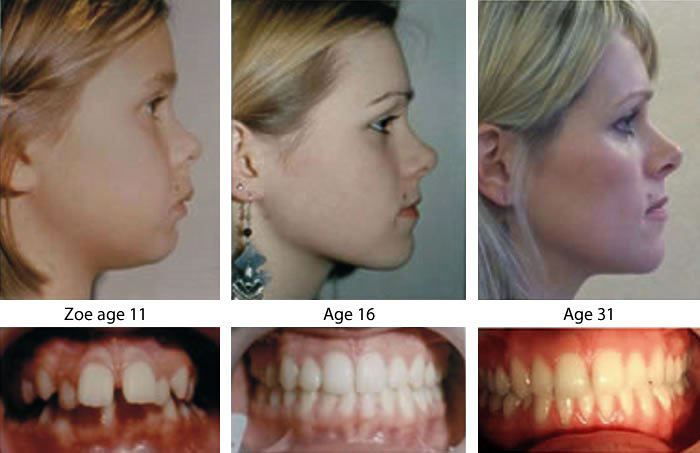 Orthodontic expansion and myofunctional therapy